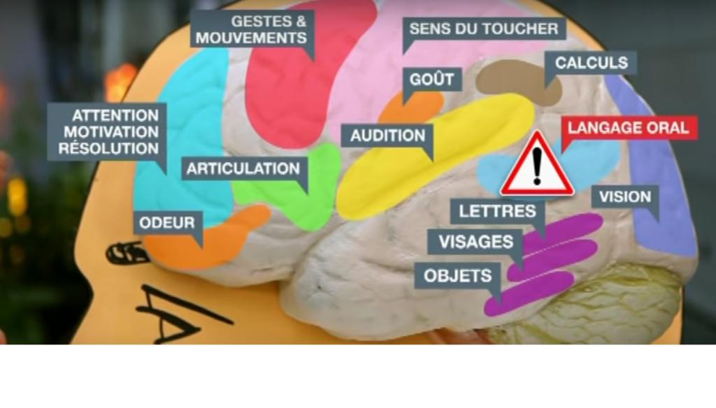 les fonctions du cerveau troubles dys